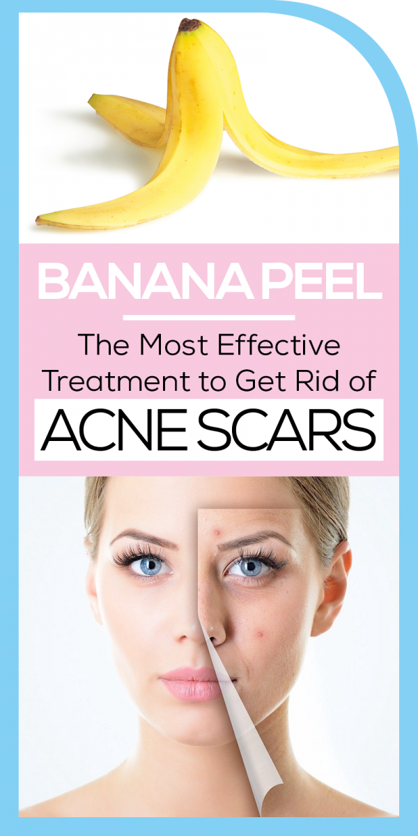 acne scar treatment A Way to Acne Scar Treatment Banana Peel