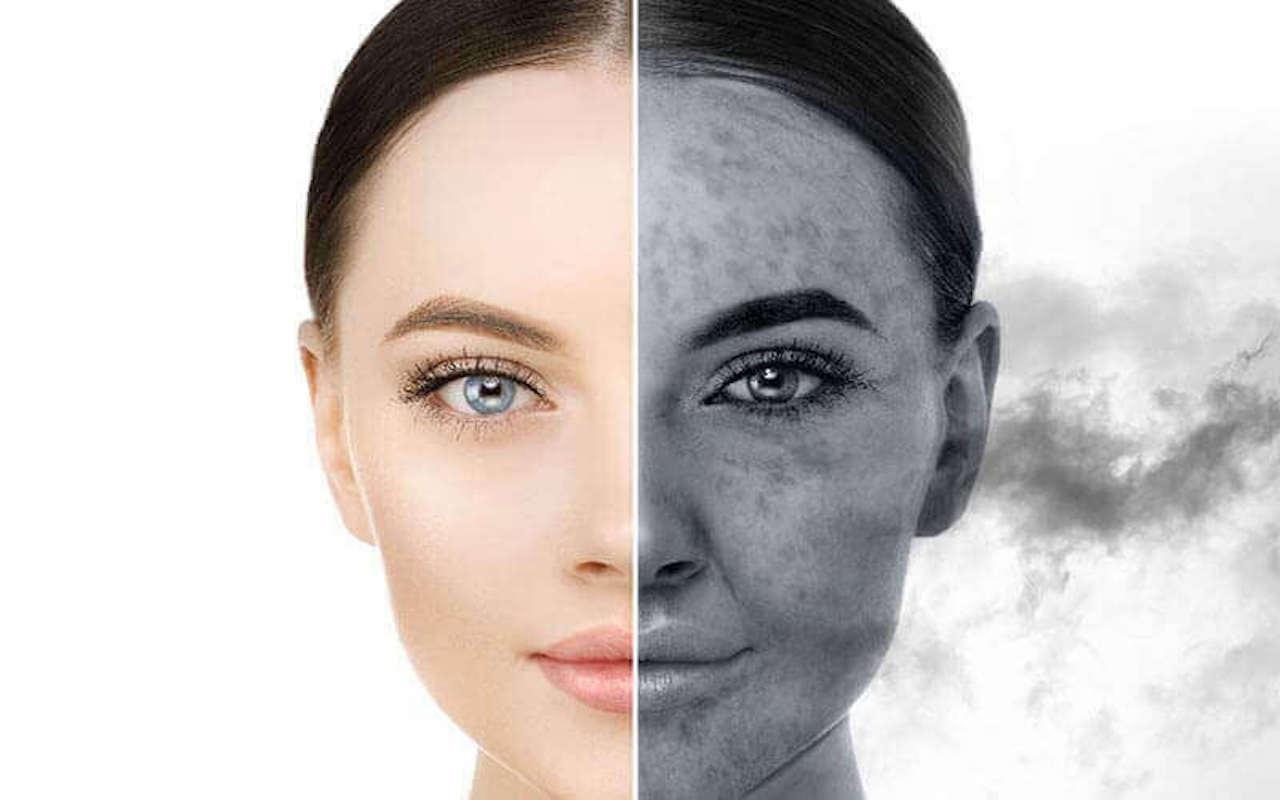 moisturizer Choosing Moisturizer For Your Skin Best Moisturizer For Dry skins