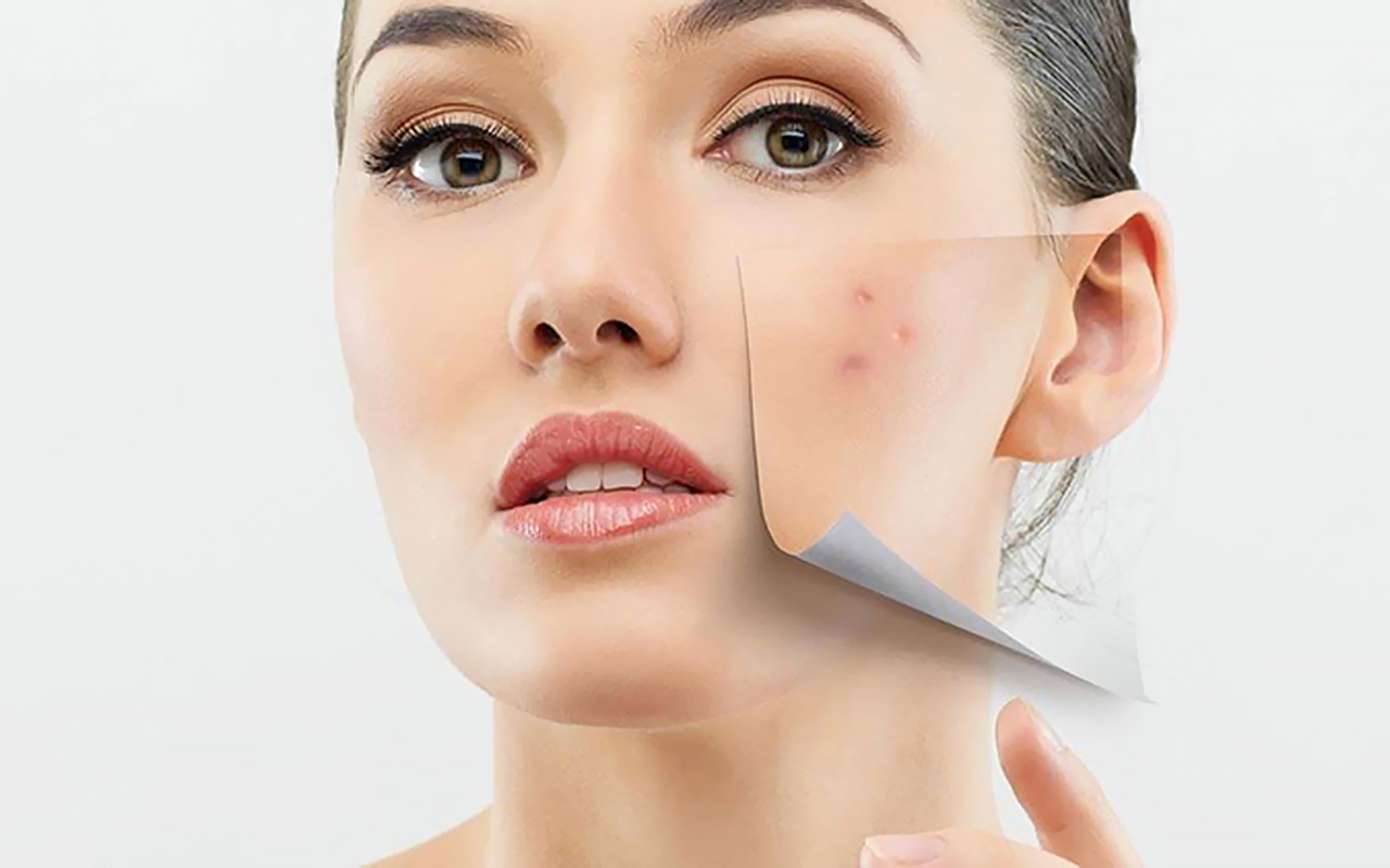 acne scars Mistakes In Acne Scars and Their Removal acne scar 1