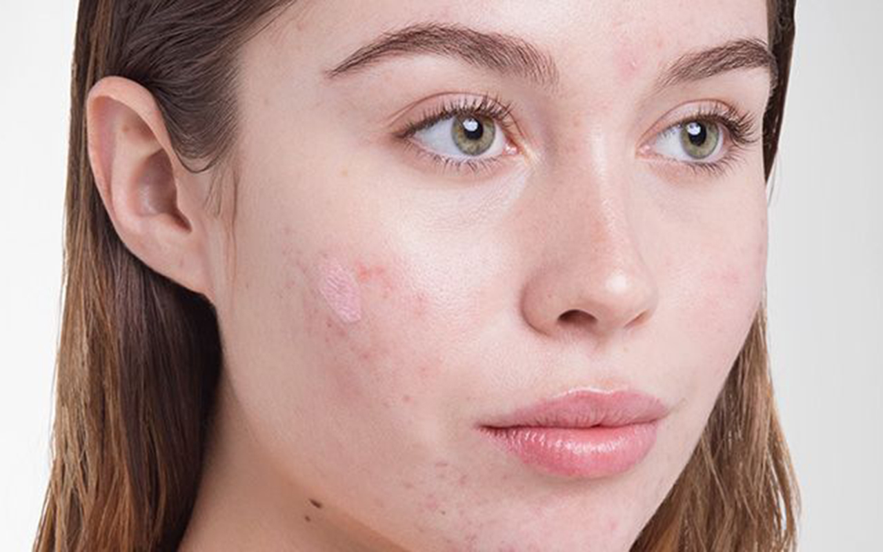 acne scars Mistakes In Acne Scars and Their Removal acne scar 2
