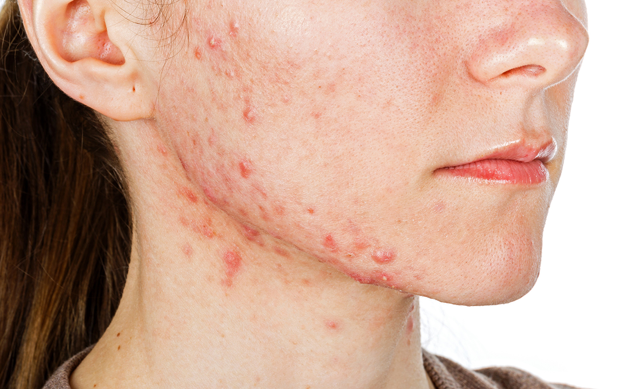 what causes acne What Causes Acne? what causes acne 1