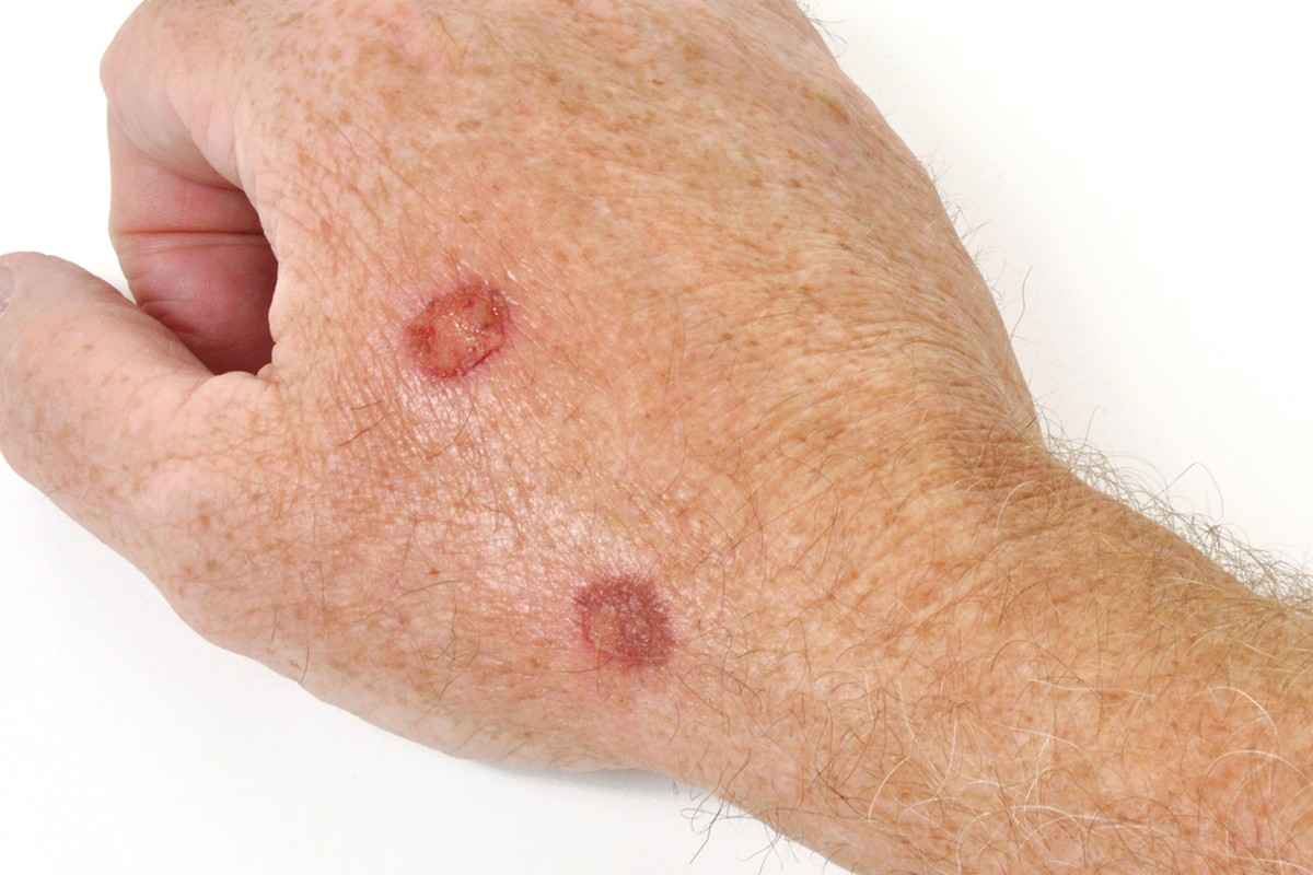 keratosis pilaris Keratosis Pilaris: What Is It? hero actinic keratosis