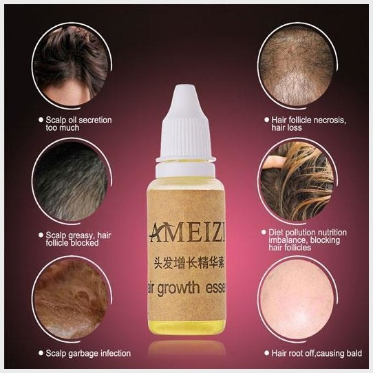 hair loss in women Solution of Hair Loss In Women womens natural hair growth solution with essential oil